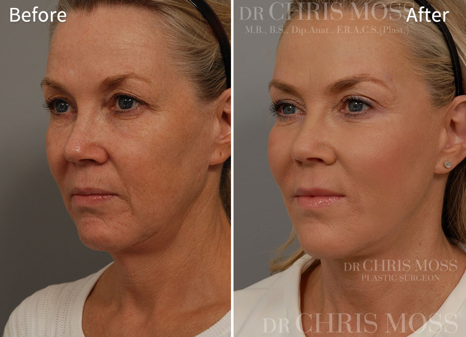 Facelift Melbourne Before and After (oblique) - Dr Chris Moss 2