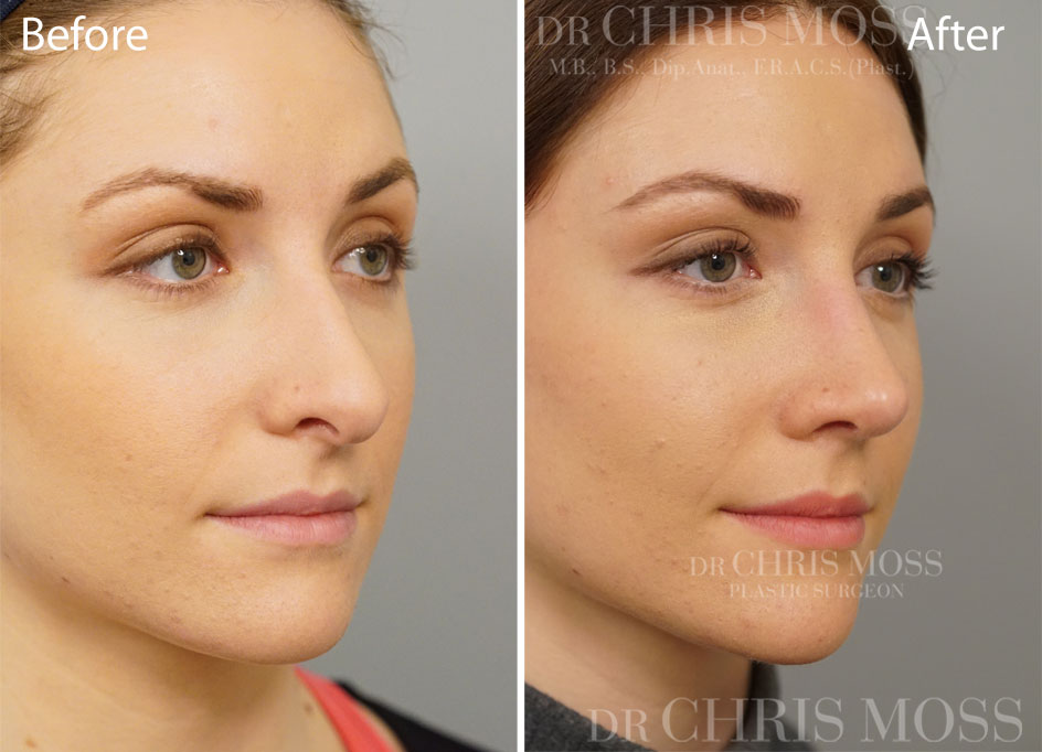 Rhinoplasty Melbourne Before and After (oblique) - Dr Chris Moss 4