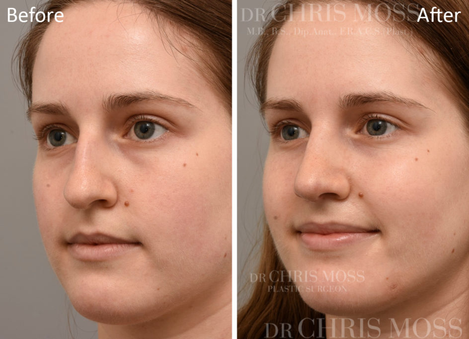 Rhinoplasty Melbourne Before and After (oblique) - Dr Chris Moss 5