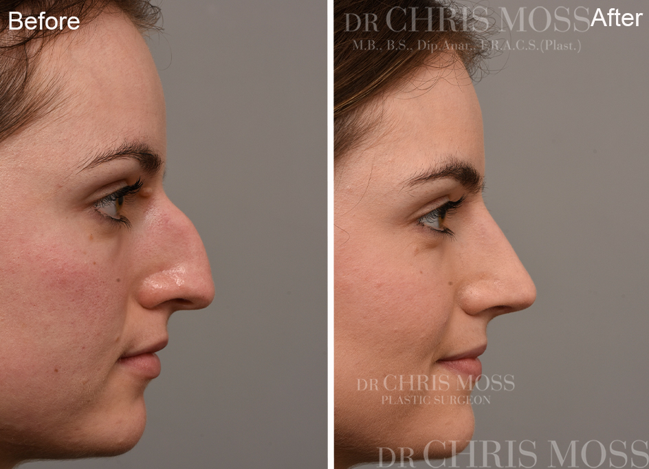 Rhinoplasty Before and After (profile) - Dr Chris Moss 3