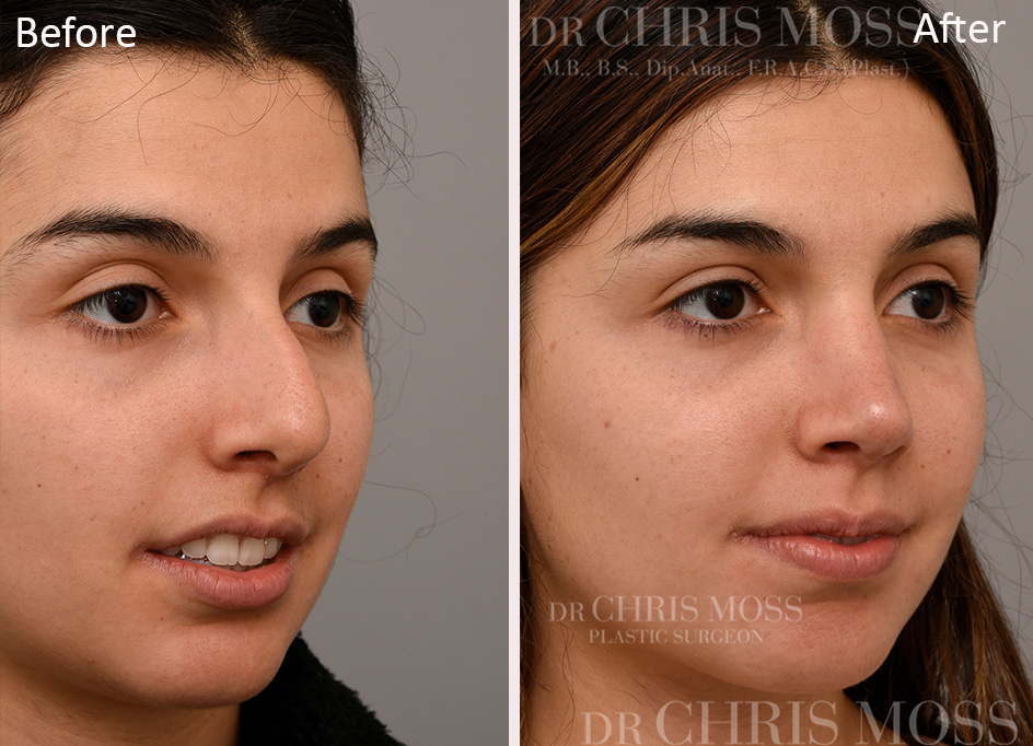 Rhinoplasty Before and After (oblique) - Dr Chris Moss 6