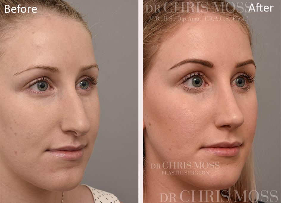 Rhinoplasty Before and After (oblique) - Dr Chris Moss 1