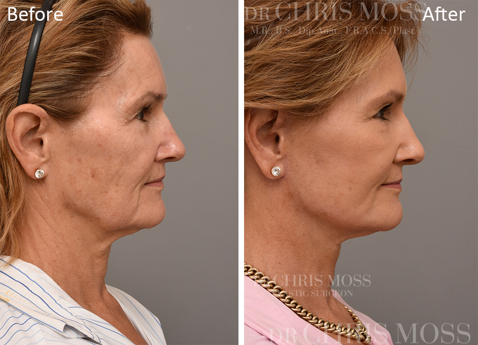 Facelift Melbourne Before and After (profile) - Dr Chris Moss 5