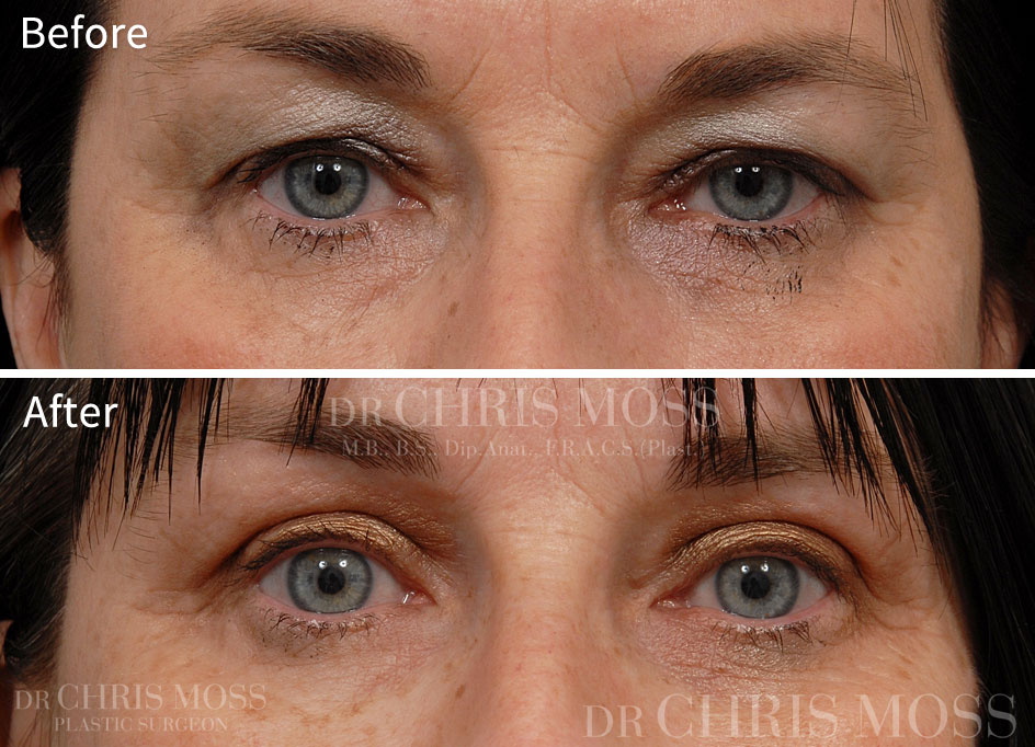 Eyelid Surgery (Blepharoplasty) Melbourne Before and After (front) - Dr. Chris Moss 3