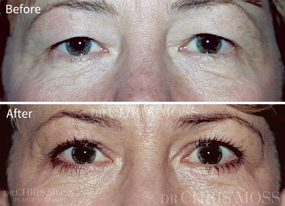 Eyelid Surgery (Blepharoplasty) Melbourne Before and After - Dr. Chris Moss 5