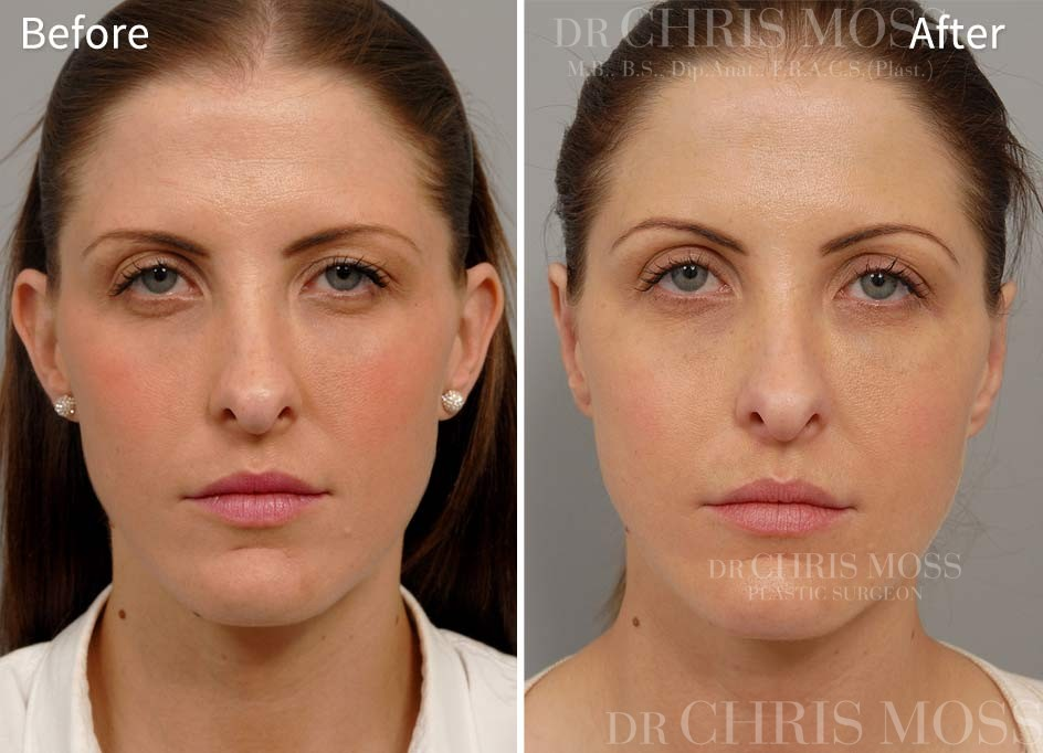 Otoplasty Before and After (front) - Dr Chris Moss 2