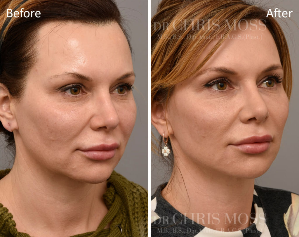 Mid Face Lift - Before and After - Oblique View