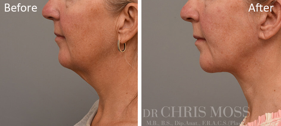 Neck Lift Melbourne, Before and After (profile) - Dr Chris Moss 1