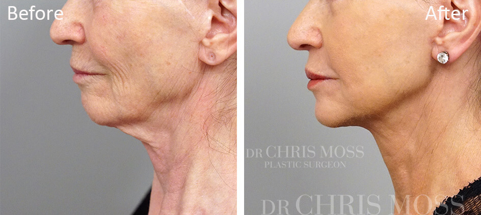Neck Lift Melbourne, Before and After (profile) - Dr Chris Moss 2