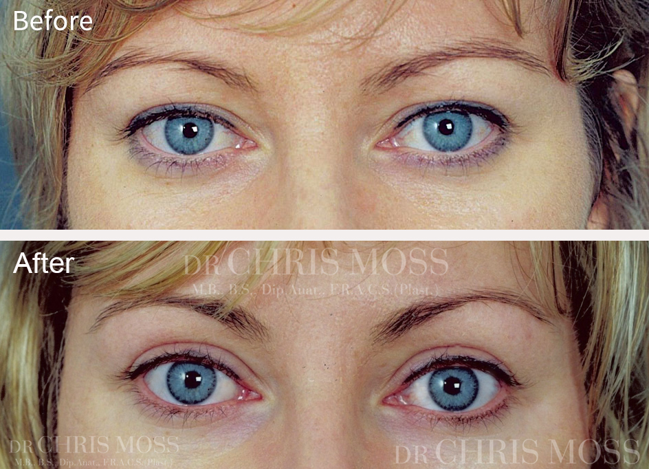 Eyelid Surgery (Blepharoplasty) Melbourne Before and After - Dr. Chris Moss 1A