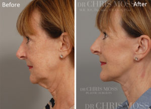 Face and Neck Lift, Before and After, Dr Chris Moss Home